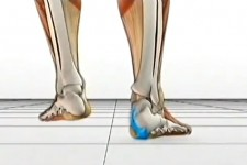 Flat Feet and Treatment