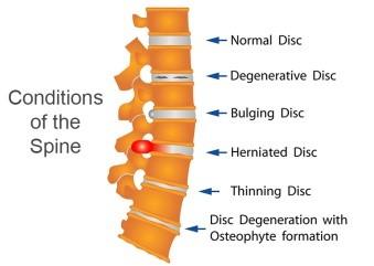 SPINAL DEGENERATIVE DISEASE
