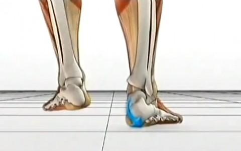 Flat Feet and Treatment