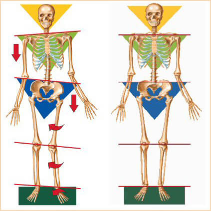 blog-Imbalanced-Skeleton