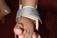 Bàn chân lệch có nguy hiểm?