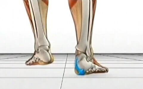 Chứng bàn chân bẹt và cách điều trị