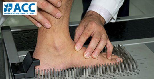 Bàn chân bẹt và chứng đau gối