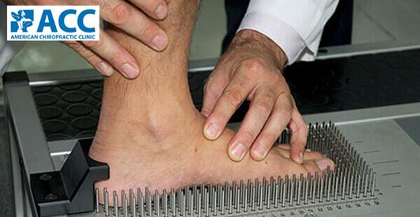 chỉnh hình bàn chân bẹt