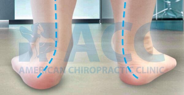 các chứng đau bàn chân