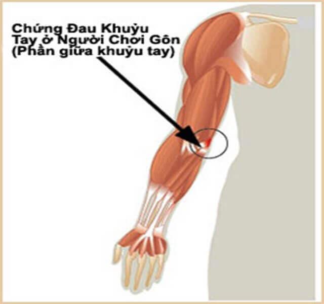 chấn thương ở khuỷu tay