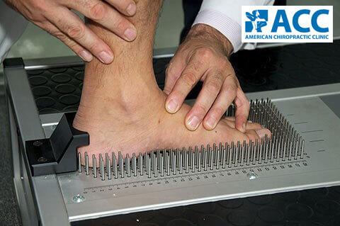 chỉnh hình bàn chân
