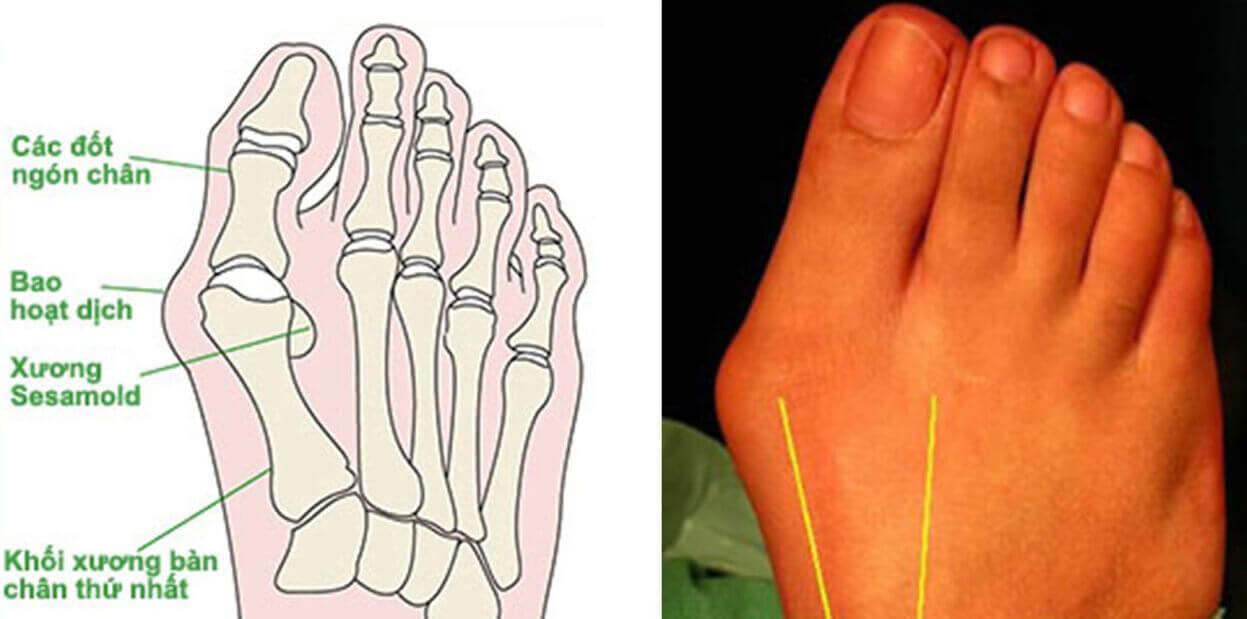 viêm bao dịch ngón cái
