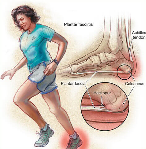 chứng đau cựa gót chân