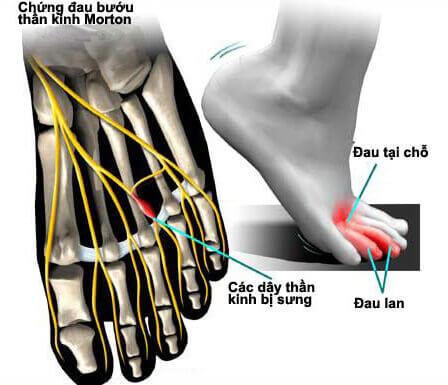 u thần kinh bàn chân