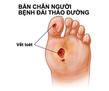 đau bàn chân do bệnh đái tháo đường