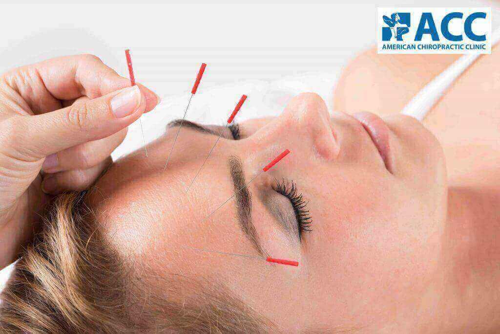 chứng đau đầu