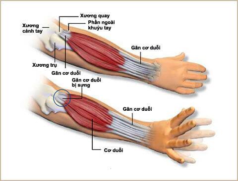 tình trạng viêm điểm bám gân khuỷu tay