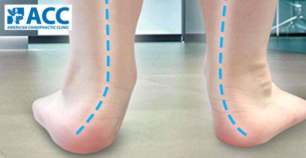 Báo lao động thủ đô Hà Nội đưa tin về chứng dị tật bàn chân bẹt ở trẻ.