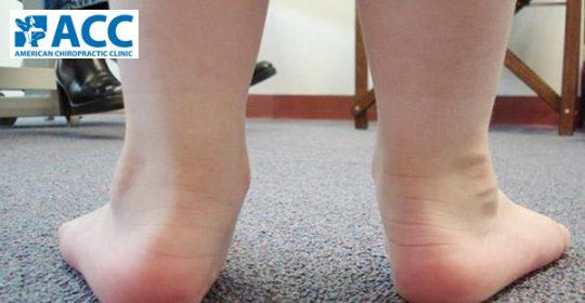 Dị tật bàn chân bẹt ở trẻ (theo Báo Mới.com ngày 10/09/2015).