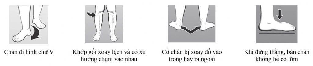 chứng bàn chân bẹt