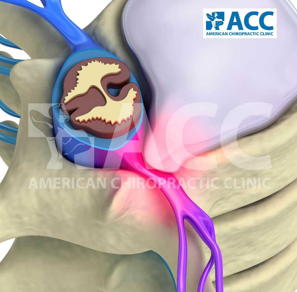 điều trị bệnh thoát vị đĩa đệm cột sống thắt lưng