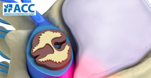 Điều trị tận gốc bệnh thoát vị đĩa đệm thắt lưng tại phòng khám ACC