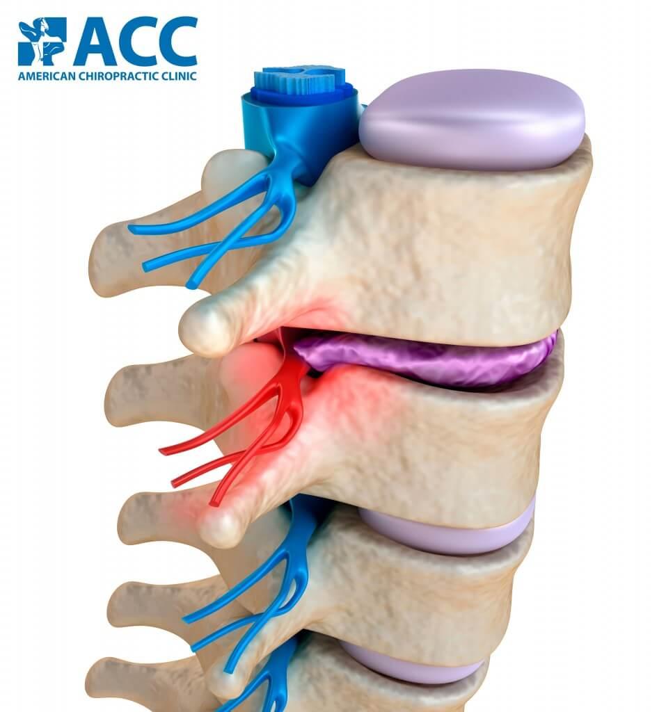 Người bệnh sẽ gặp các cơn đau cột sống do đĩa đệm thoát vị chèn ép dây thần kinh