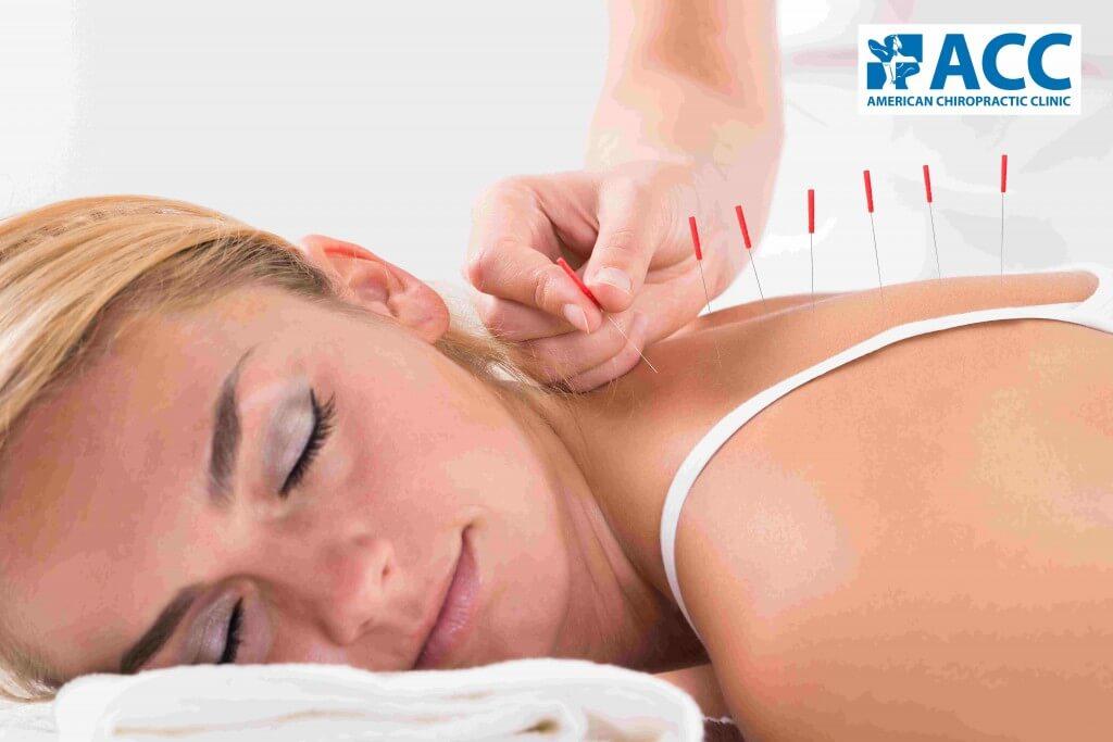 Châm cứu giúp giảm đau hiệu quả khi kết hợp cùng các phương pháp khác trong điều trị thoát vị đĩa đệm