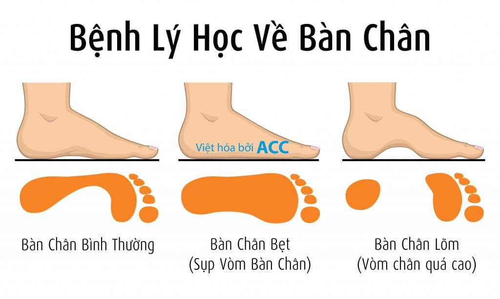 nguyên nhân bàn chân bẹt ACC
