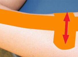 Dán một miếng dán cơ qua vùng bị đau trên háng