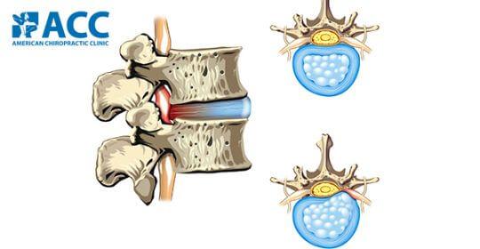 Các bác sĩ ACC chia sẻ với độc giả Zing News về phương pháp chữa trị thoát vị đĩa đệm không phẫu thuật