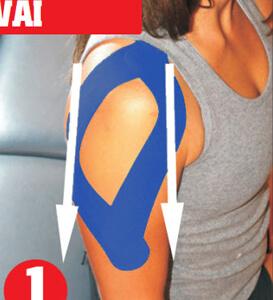 Dán băng dán cơ rocktape vào phần của vai xuống cánh tay dưới