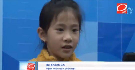 ACC điều trị thành công tật bàn chân bẹt cho bé Khánh Chi