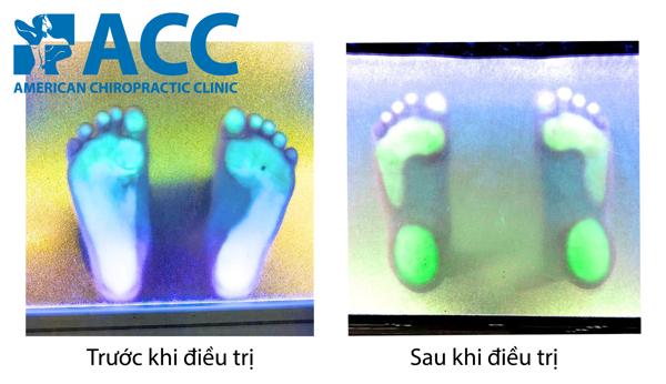điều trị đau nhức xương khớp bàn chân