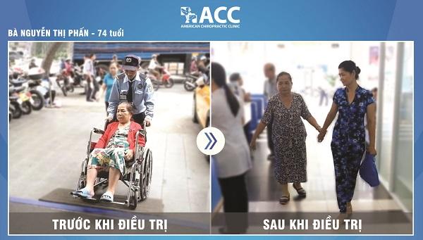 Cô Nguyễn Thị Phấn trị thoát vị đĩa đệm tại ACC