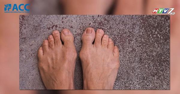 nguyên nhân gây ra viêm bao hoạt dịch ngón chân cái