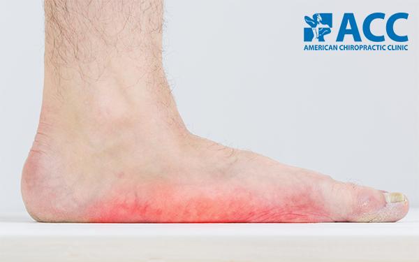đau cẳng chân khi chạy bộ do bàn chân bẹt
