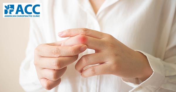thông tin về trật khớp ngón tay