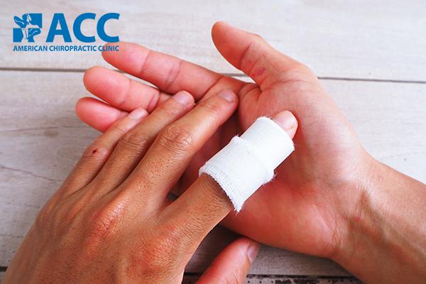 vấn đề thường gặp về bong gân ngón tay khi chơi thể thao