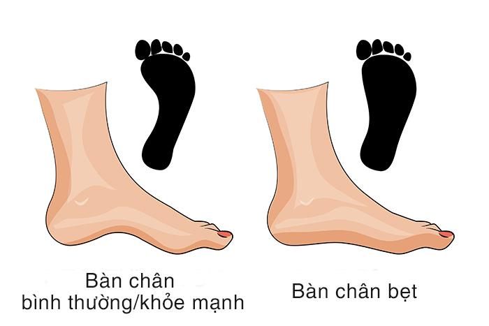 bàn chân bẹt ảnh hưởng đến đầu gối khi tập squat