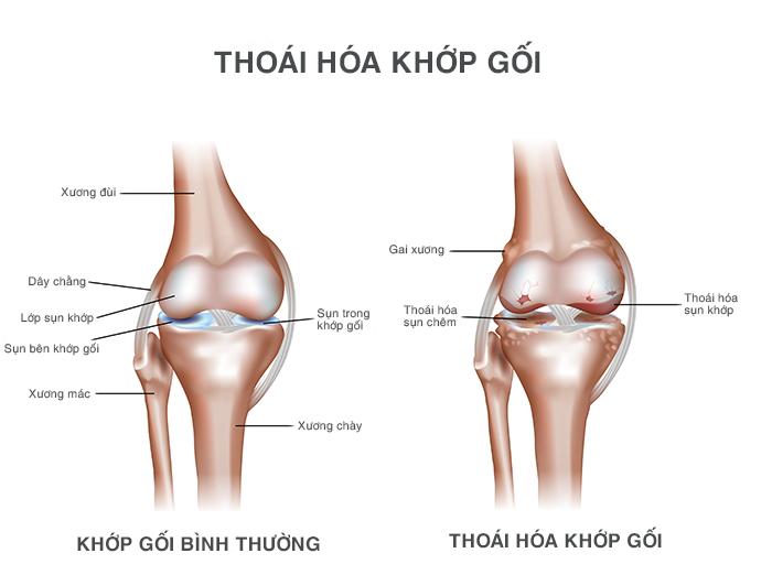 viêm khớp gây đau đầu gối khi tập squat