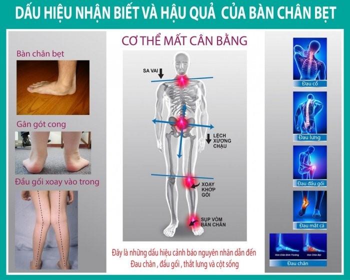 dấu hiệu nhận biết bàn chân bẹt