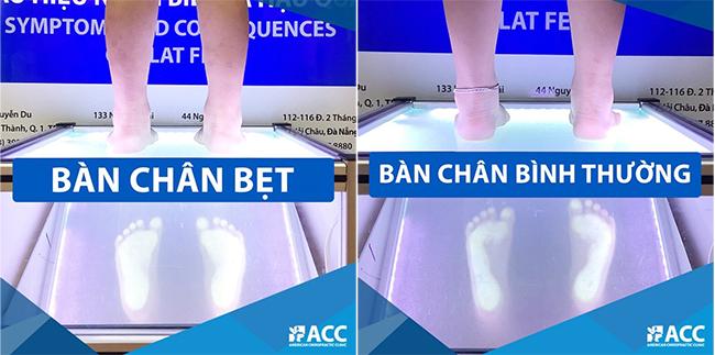 tầm soát chứng bàn chân bẹt cho trẻ
