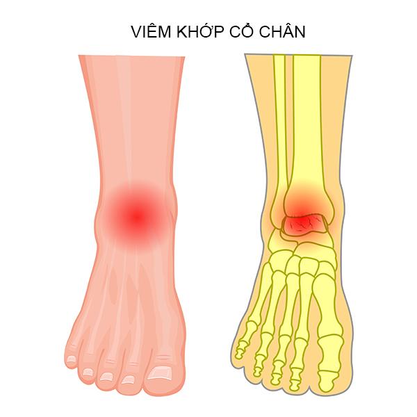 Tình trạng viêm khớp cổ chân