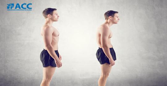 5 bài tập chữa gù lưng không phải ai cũng biết