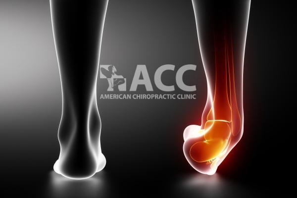 bong gân là một trong những nguyên nhân gây đau bàn chân