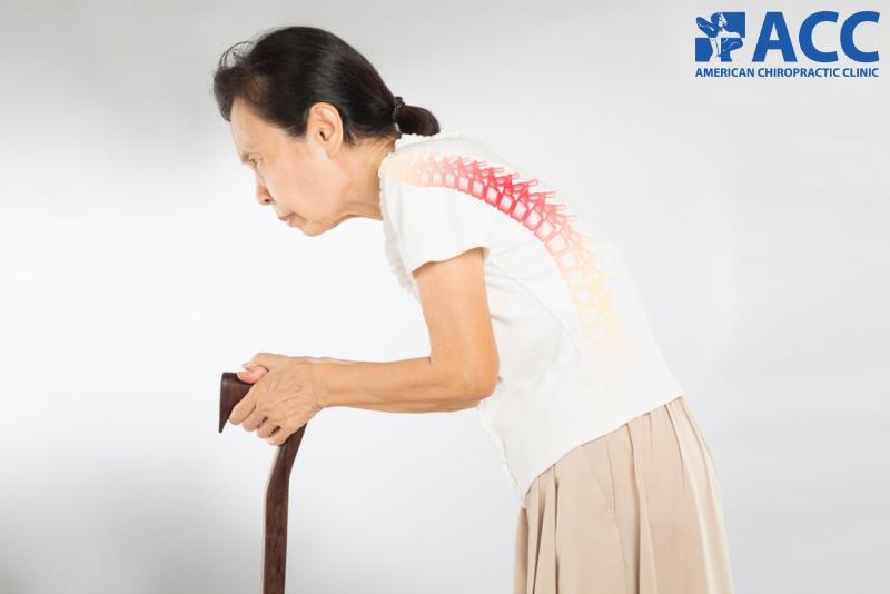 thoái hóa cột sống thắt lưng có thể gây cong vẹo cột sống