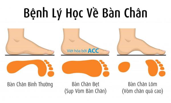 cách kiểm tra bàn chân bẹt