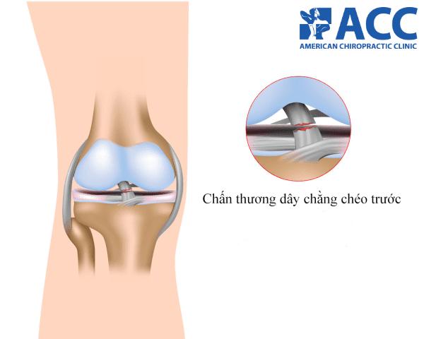 đứt dây chằng chéo trước là một trong những chấn thương đầu gối phổ biến