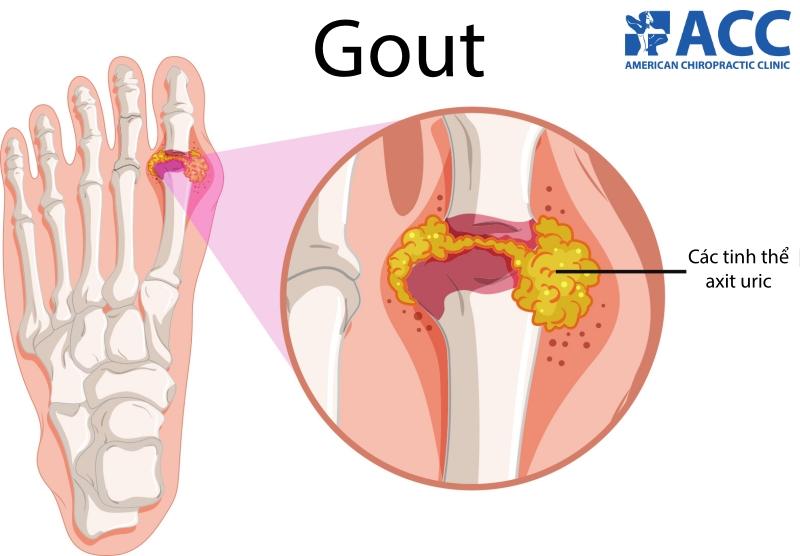 đau bàn chân do bệnh gout