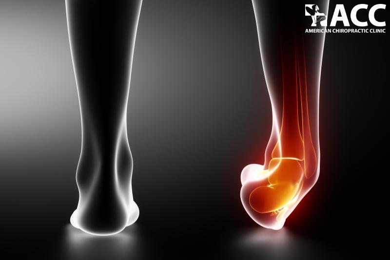 đau bàn chân do bị bong gân, căng cơ