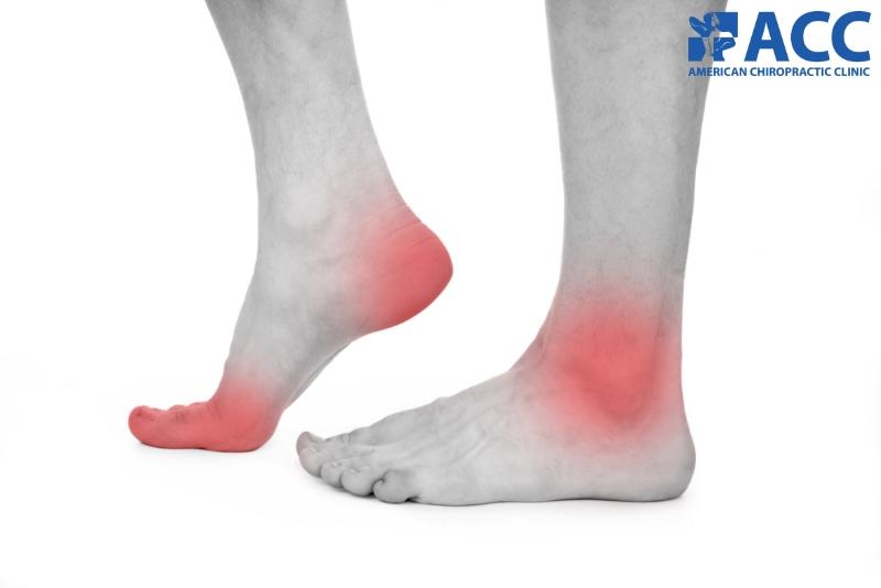 chứng đau bàn chân