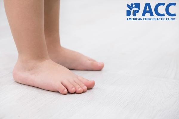 bàn chân bẹt ở trẻ