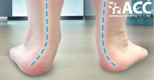 nguyên nhân trẻ đi nhón gót có thể là do chứng bàn chân bẹt